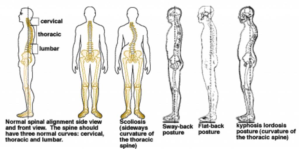 Cervical Posture Amp Stabilization Life S Work Physical