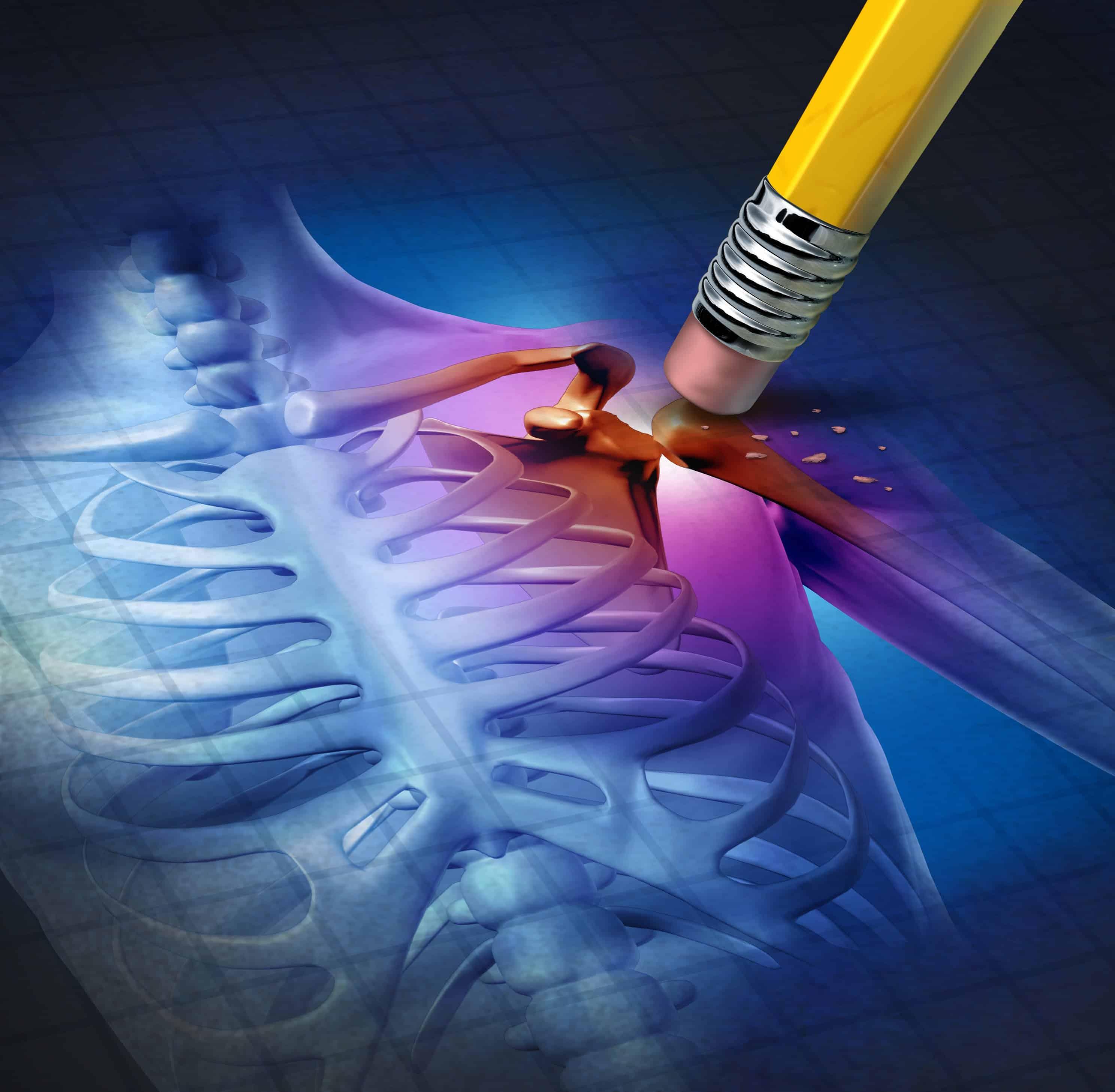 pencil erasing pain on a skeletal shoulder