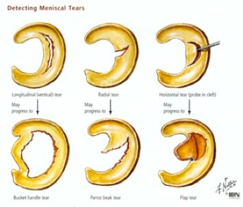 diagram of torn meniscus diagram of torn tricep