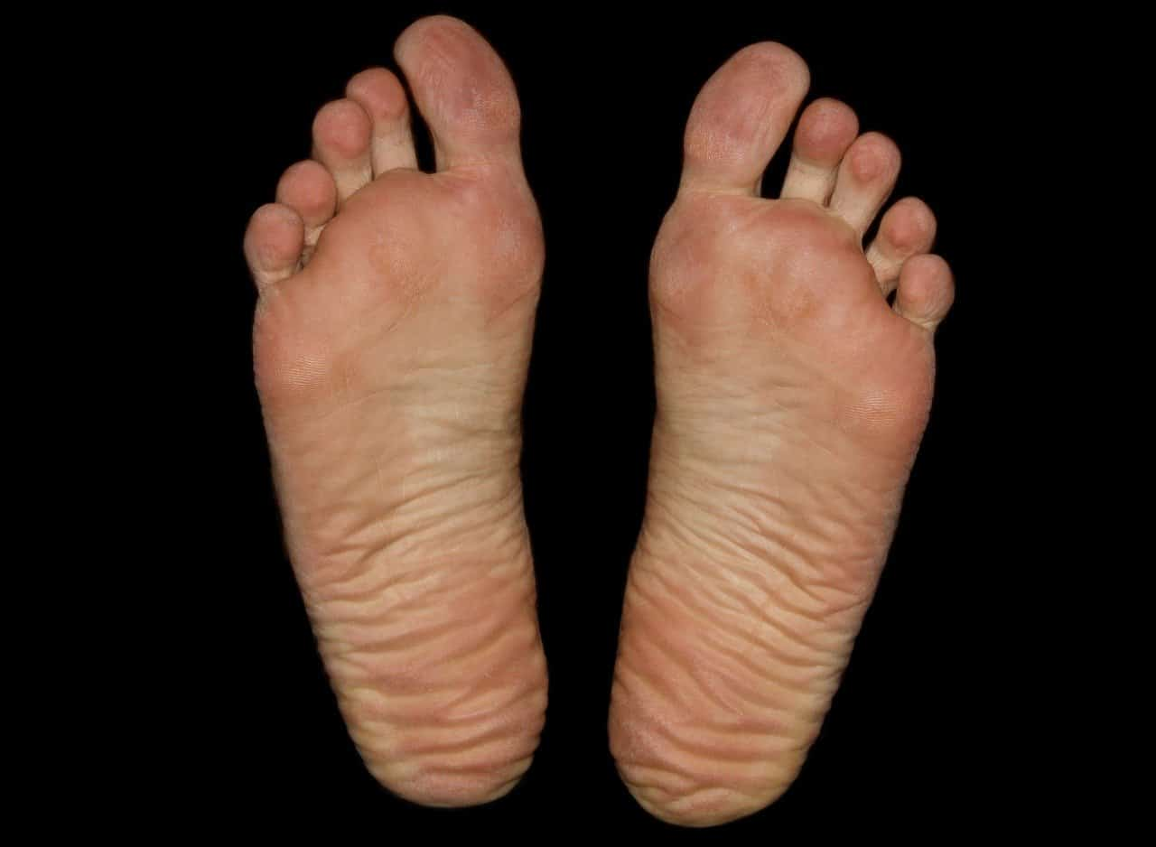 soles of bare feet
